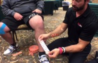 WODdoc Episode 472 P365: Rocktaping Knee Pain